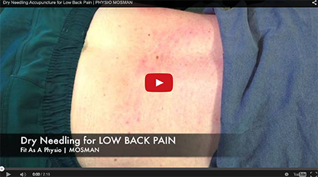 Video | Dry Needling