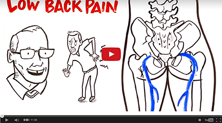 Video | Low Back Pain