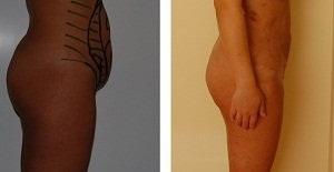 Liposuctie Abdominala Operatie - Dr. Oproiu