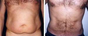 Liposuctie Abdominala Tickle Lipo