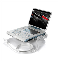 MyLab Alpha Premier Laptop Ultrasound