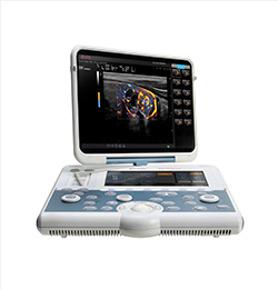 MyLab Gamma Affordable Laptop Ultrasound