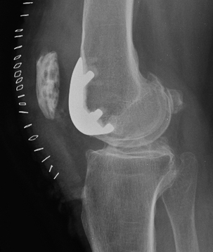 Lateral x-ray patellofemoral arthroplasty picture