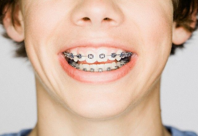 Orthodontics Financing Program
